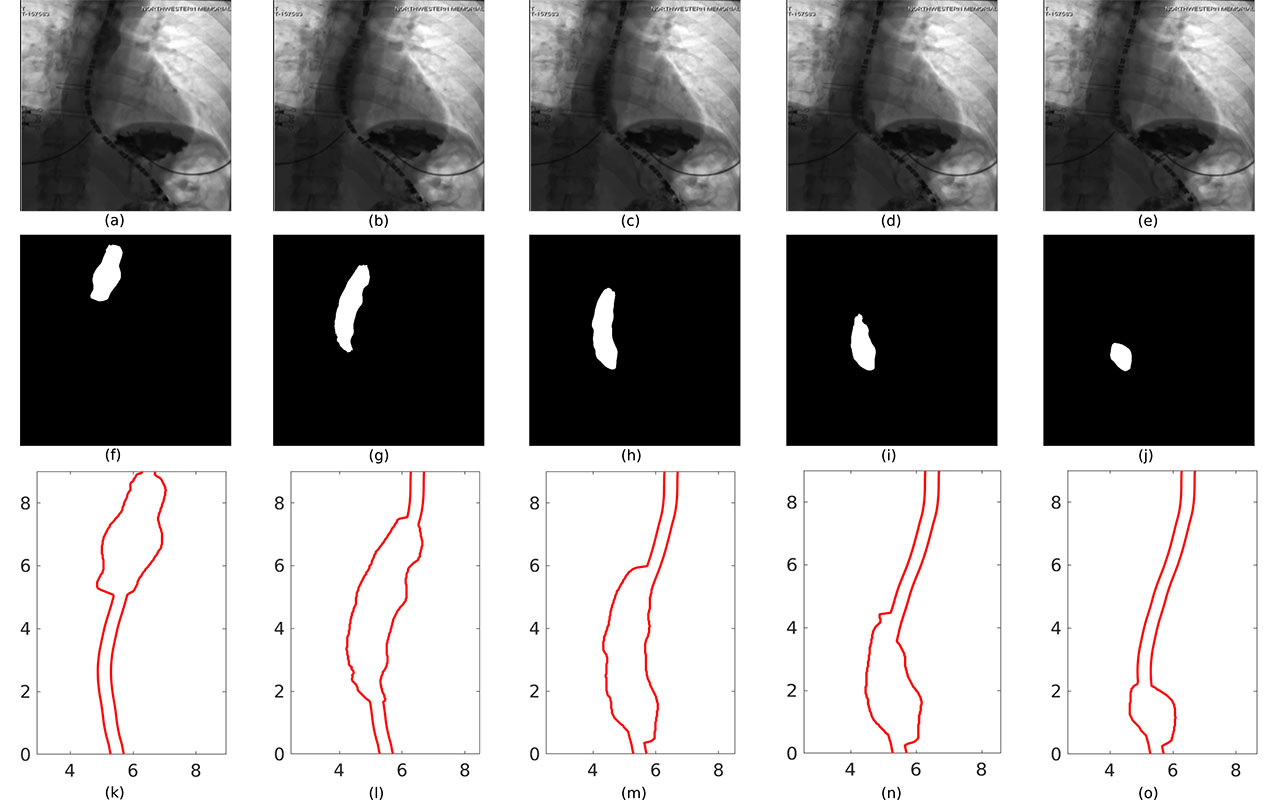 Supercomputer-Generated Models Provide Better Understanding of Esophageal Disorders